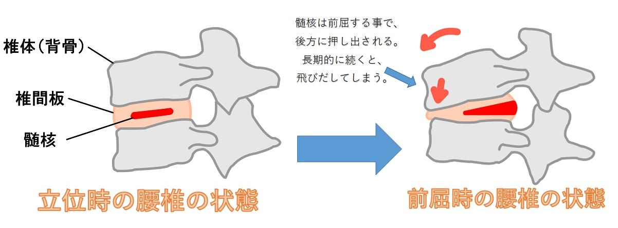 腰椎ヘルニアの髄核の移動
