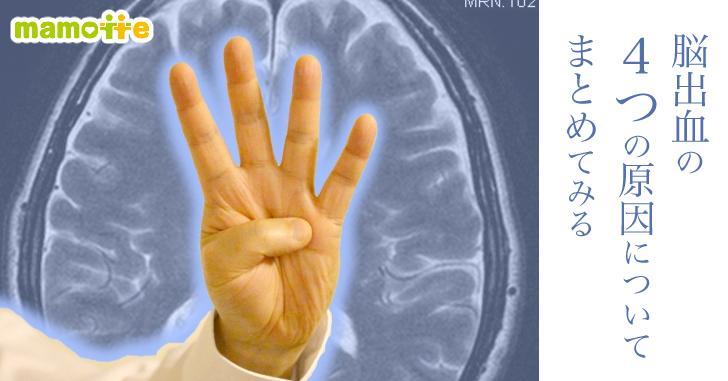 脳出血の症状