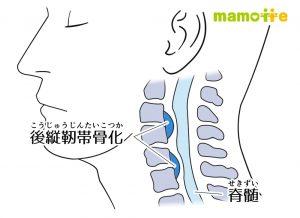 後縦靭帯骨化症とは何か?