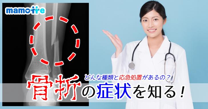 骨折の症状を知ろう