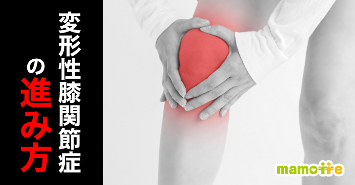 変形性膝関節症の進み方について