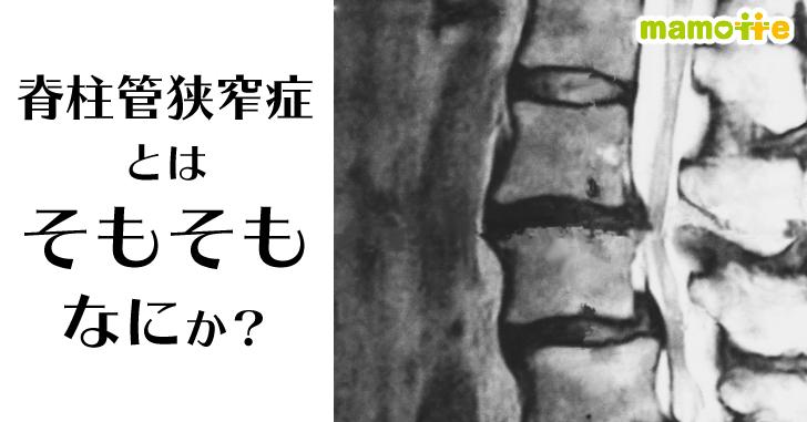 脊柱管狭窄症とは何か