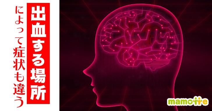 脳出血の症状は場所によって違う