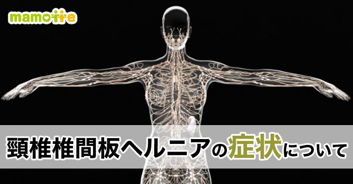 頸椎椎間板ヘルニアの症状