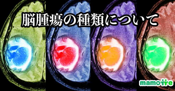 脳腫瘍の種類について
